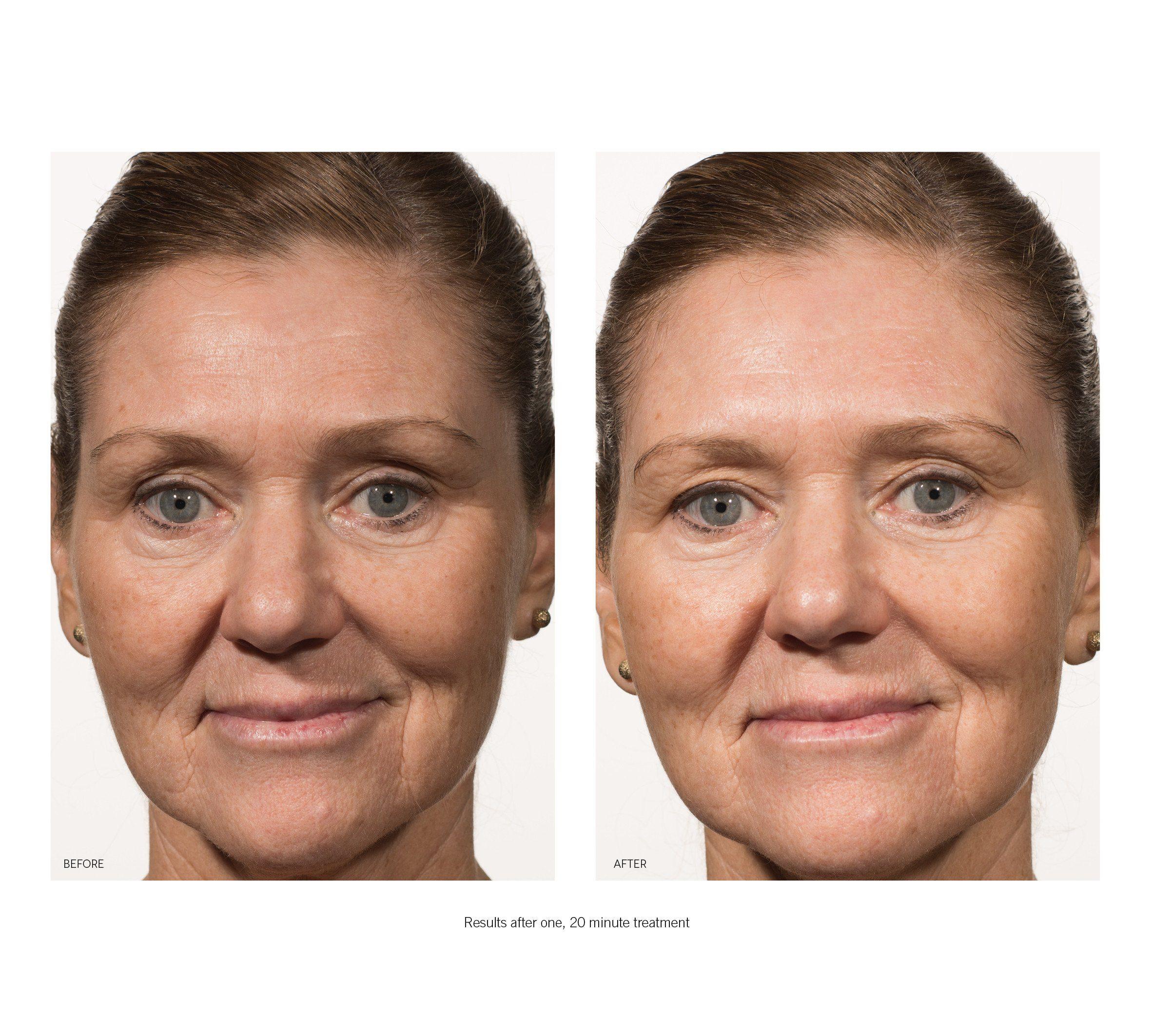 OhMart Karuna Hydrating + Face Mask 2