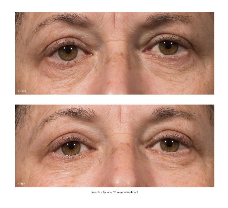 OhMart Karuna Renewal + Eye Mask 3